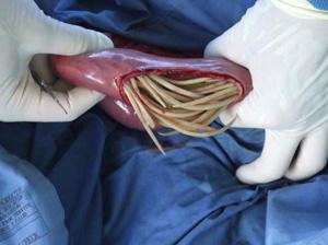 фото аскариды в кишечнике