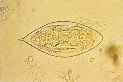 Развитие от яйца до глиста