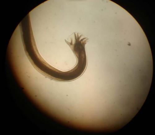 какие паразиты живут в мышцах человека