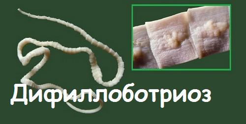 дифиллоботриоз