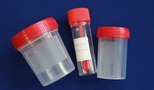 антиген анализ