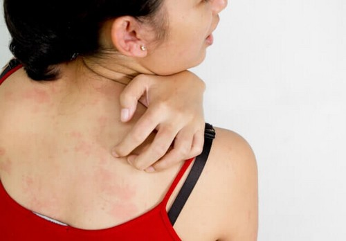 высыпания у женщины при описторхозе