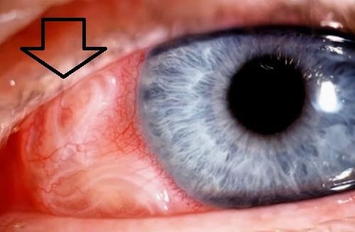 подкожный паразит в глазу фото
