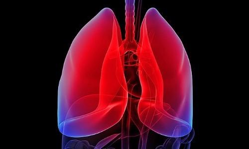 пораженные легкие пневмонией