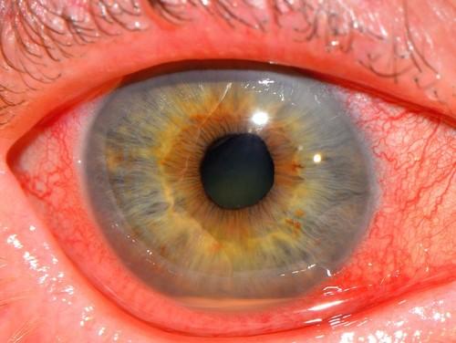 воспалительные процессы в сосудах и сетчатке глаза