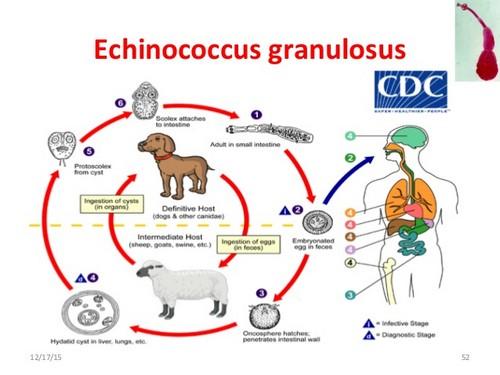 жизненный цикл эхинококка