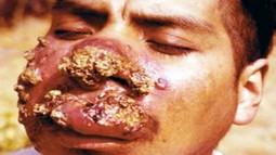 Симптомы кожного лейшманиоза