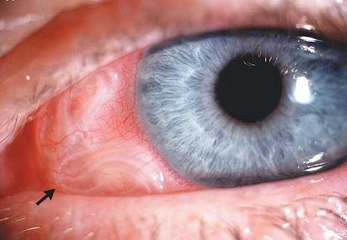 Офтальмомиаз